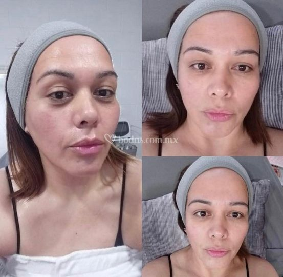 Antes y Despues Facial