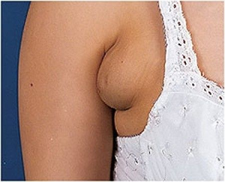 Sarpullido debajo de la mama
