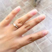 Ajustador de anillo - 1